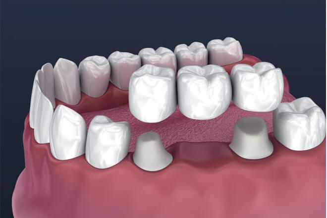 Dental Bridging Process
