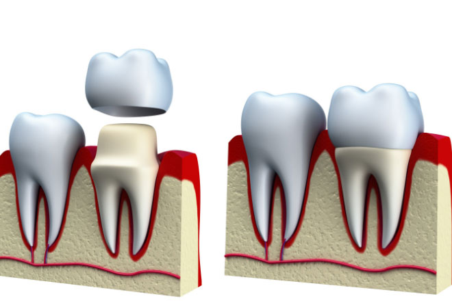 Dental-Crown-Procedure