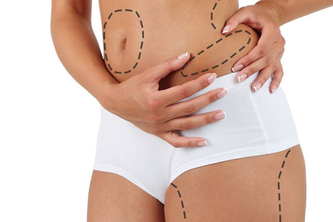 advantages-of-liposuction