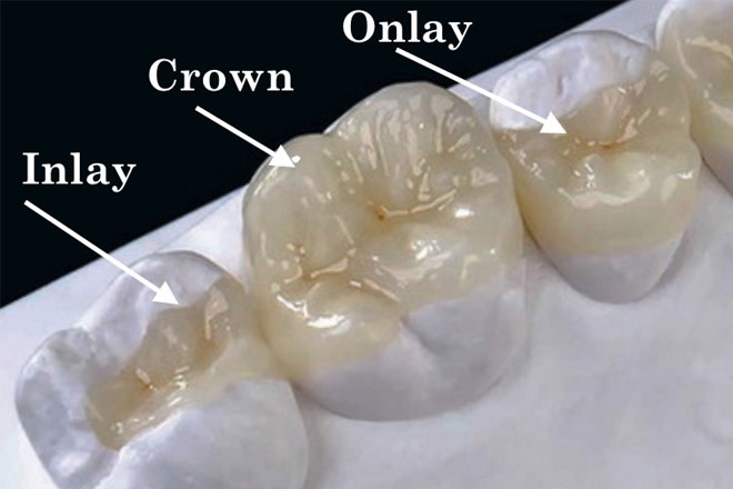dental-intra-oral