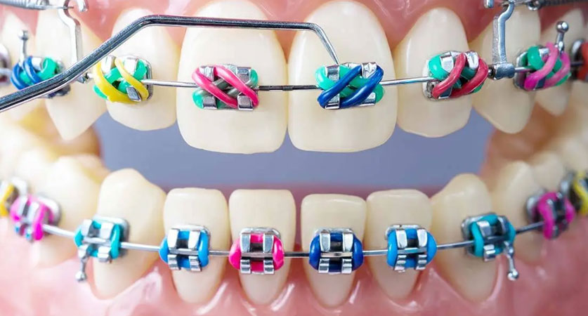 all braces colors