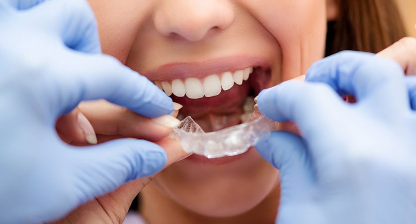 orthodontist payment plans